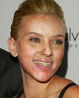 Celebrity sexy Zähne Aufheller sicher