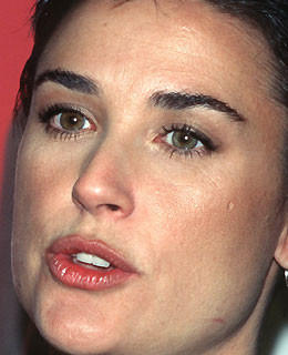 Demi Moore Schönheits-ops operation beauty