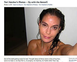 Teri Hatcher Botox Beweisfotos Facebook